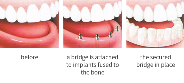 Dental Implants Minneapolis
