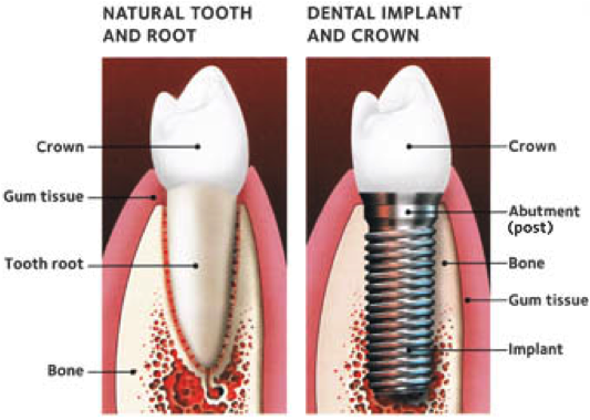 Minneapolis Dental Implants