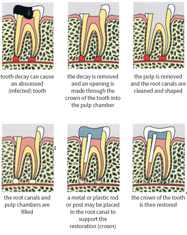 Minneapolis Root Canal Treatment